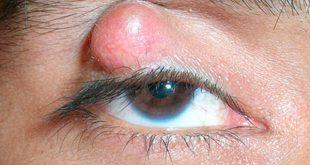 Cách làm xẹp mụt lẹo mắt hiệu quả